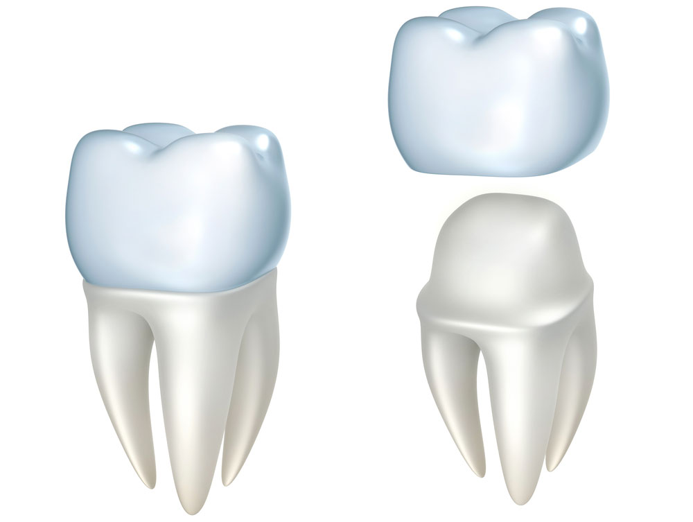 Dental Crowns Bellingham WA